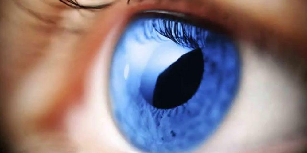 Terapia Clark natural para curar Glaucoma
