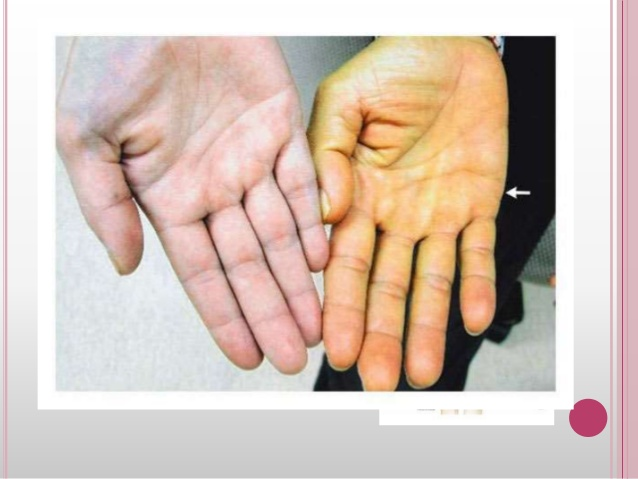 Terapia Clark natural para curar la Hemocromatosis