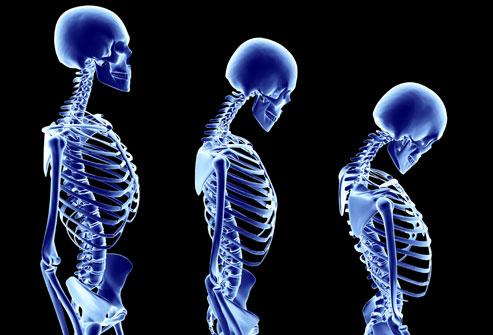 Terapia Clark natural para curar la osteoporosis